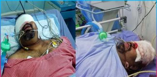 kathi mahesh seriously injured and situation critical