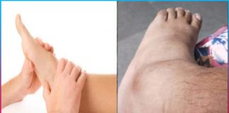 swollen feet then try these effective home remedies